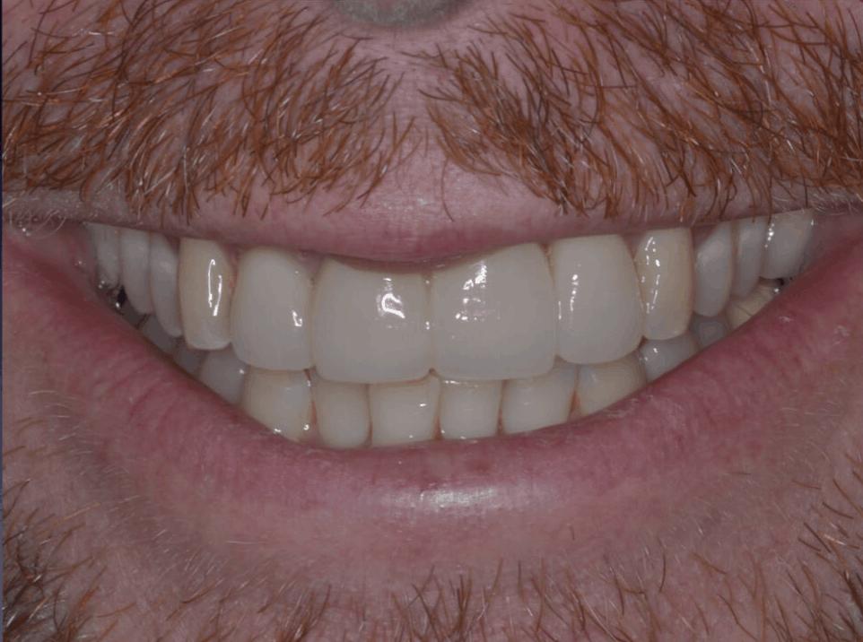 emax implant crown danbury ct