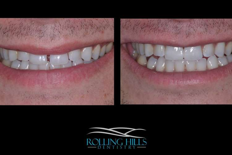 dental composite danbury