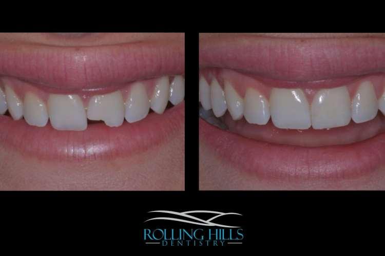 dental composites in danbury
