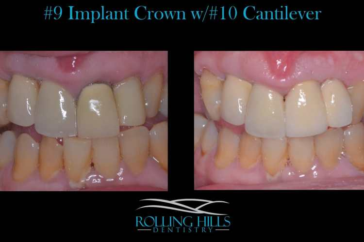 dental implants 06810