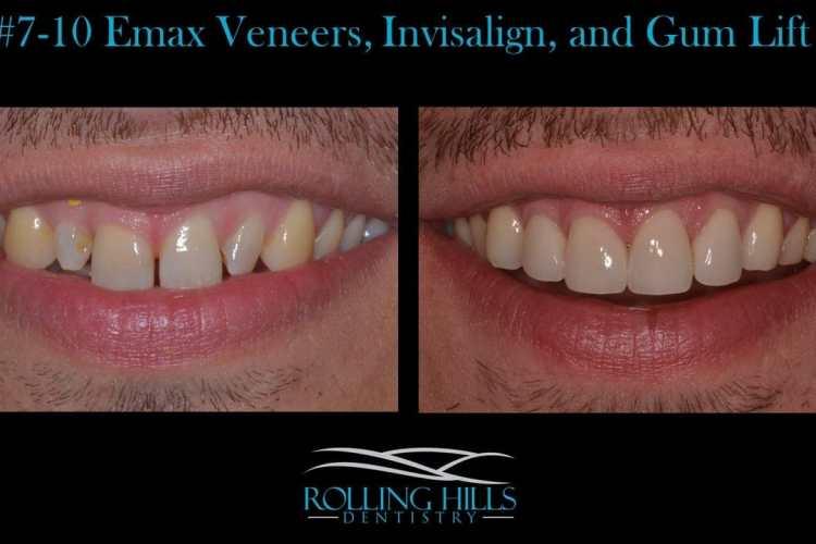 danbury dental veneers