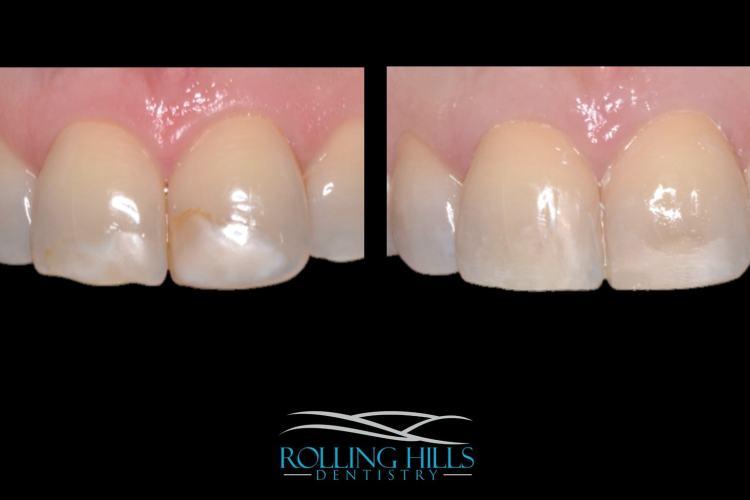 composite dental work