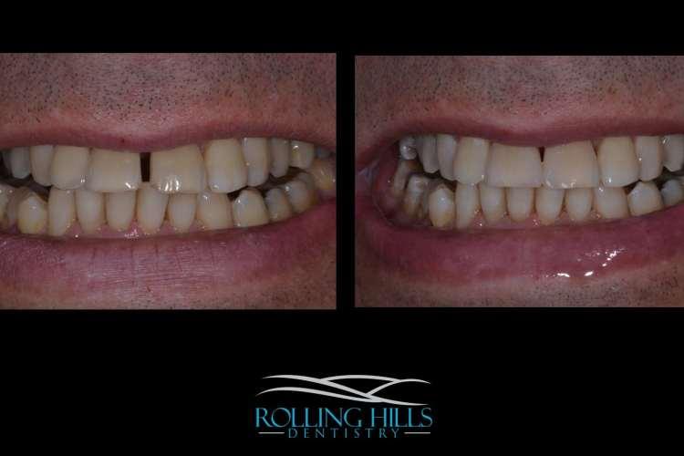 dental composite danbury ct