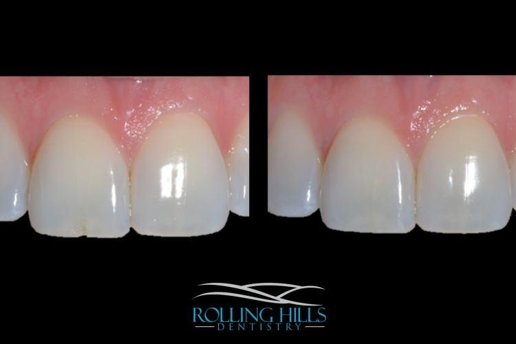 dental composites danbury
