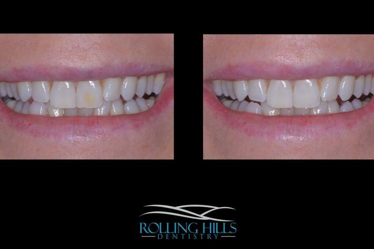 danbury cosmetic dentist