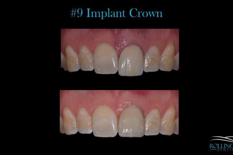 dental implants crowns