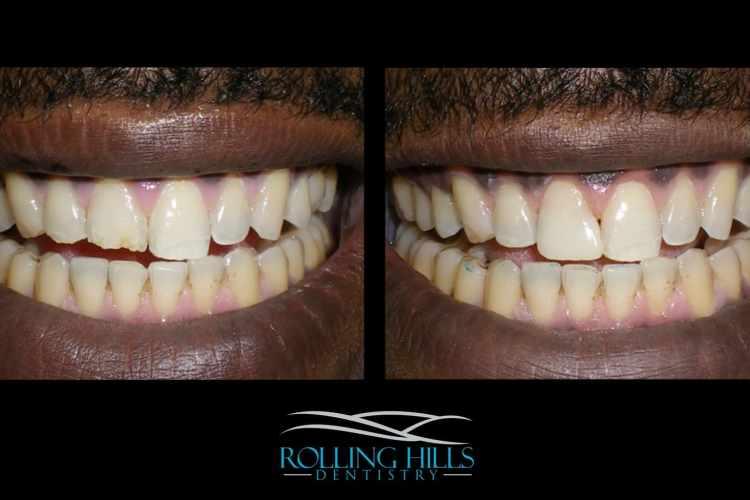danbury cosmetic dentist ct