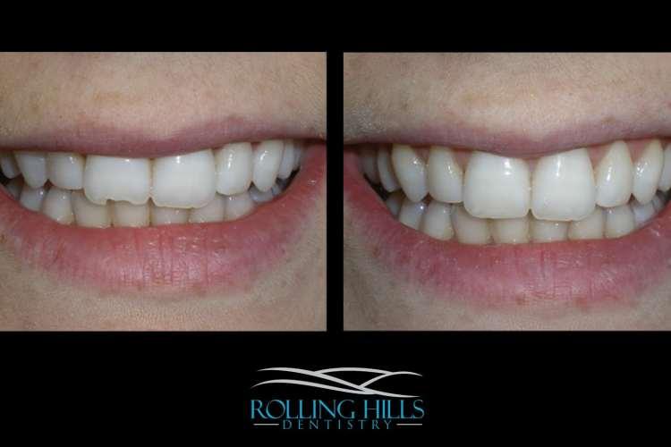 danbury ct cosmetic dentist