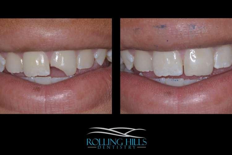 cosmetic composite dentist