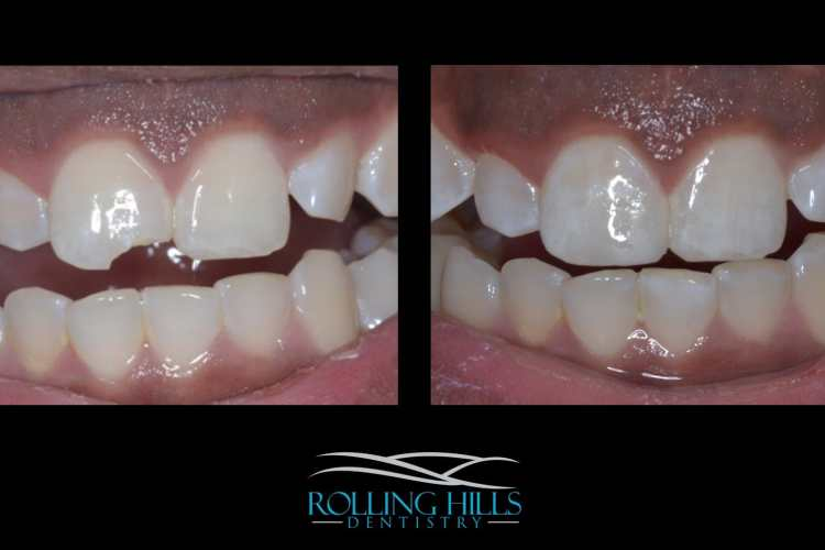 composite dentistry ct
