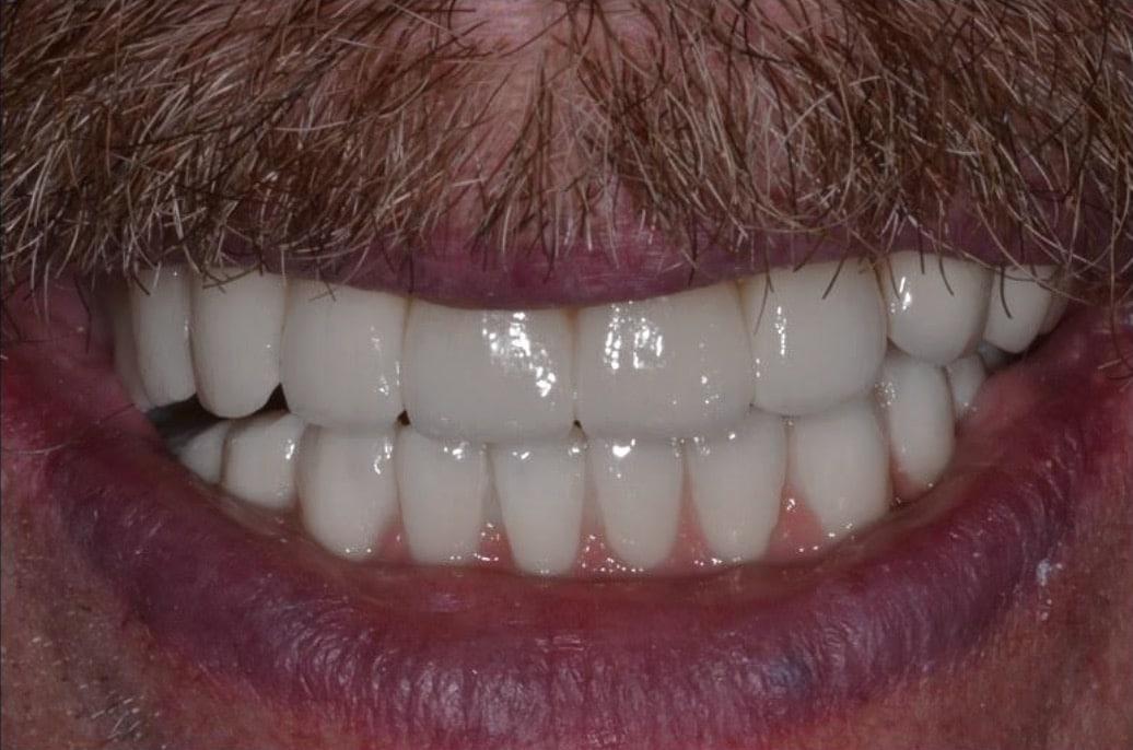 after dental implant restoration
