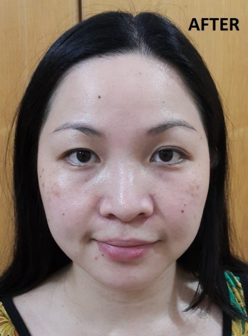 After microdermabrasion