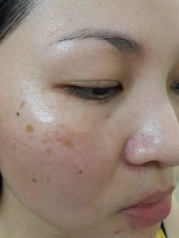 Slightly shrink pores