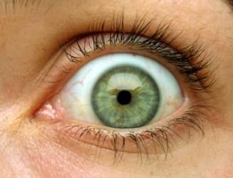 True Green Eyes are not Hazel