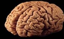 Creierul oamenilor cu exces de greutate îmbătrânește mai repede