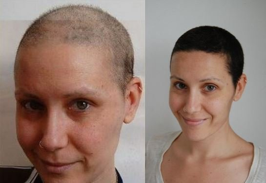 The Best Does Hair Dye Cause Cancer Bladder Cancer And Safe Hair Pictures