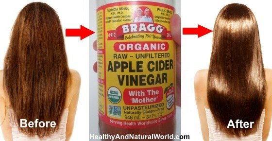 The Best Why You Should Wash Your Hair With Apple Cider Vinegar Pictures