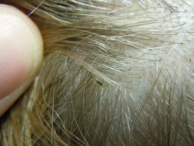 The Best What Do Lice Look Like The Video Is Kinda Gross But Necessary Pictures