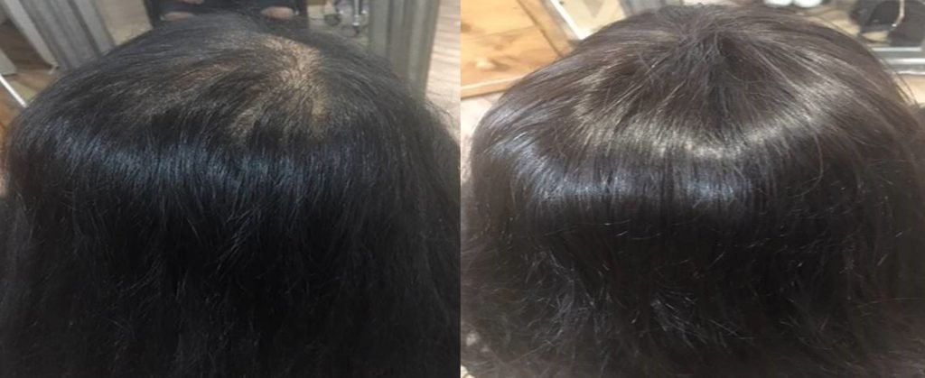 The Best Female Pattern Baldness New Hair Technology Can Now Add Pictures