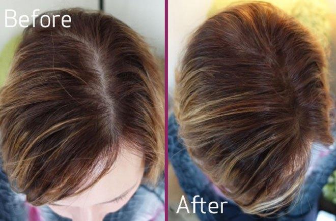 The Best Common Causes And Remedies For Hair Loss In Females Pictures