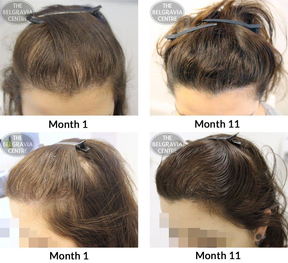 The Best Hairstyles Female Hair Loss Fade Haircut Pictures