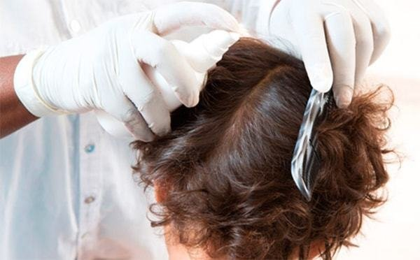 The Best The Essential Guide On Lice What Do Nits Look Like On Pictures