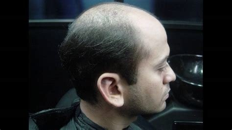 The Best Know Male Pattern Baldness Youtube Pictures