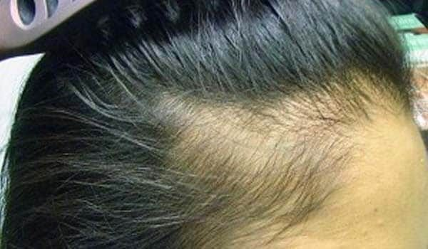 The Best Baldness Causes And Treatment Pictures