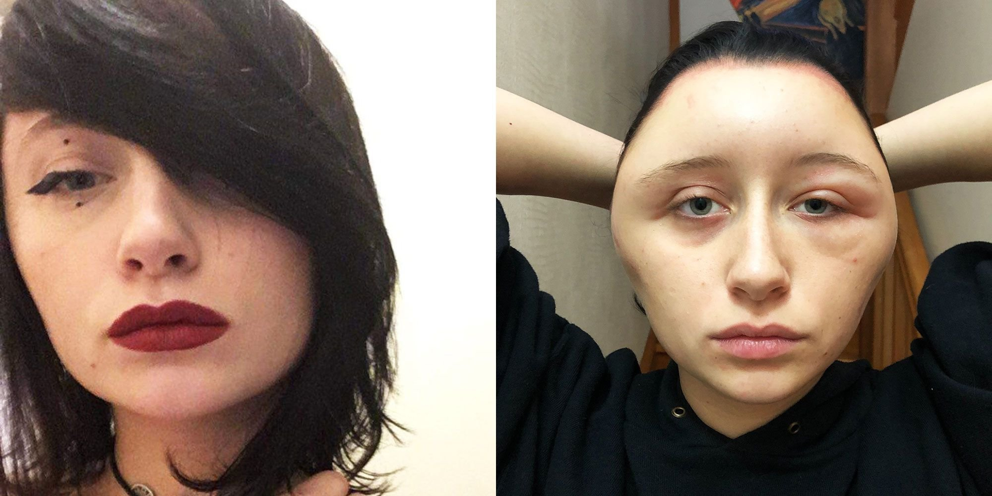 The Best Woman Had Severely Swollen Head After Allergic Reaction To Pictures