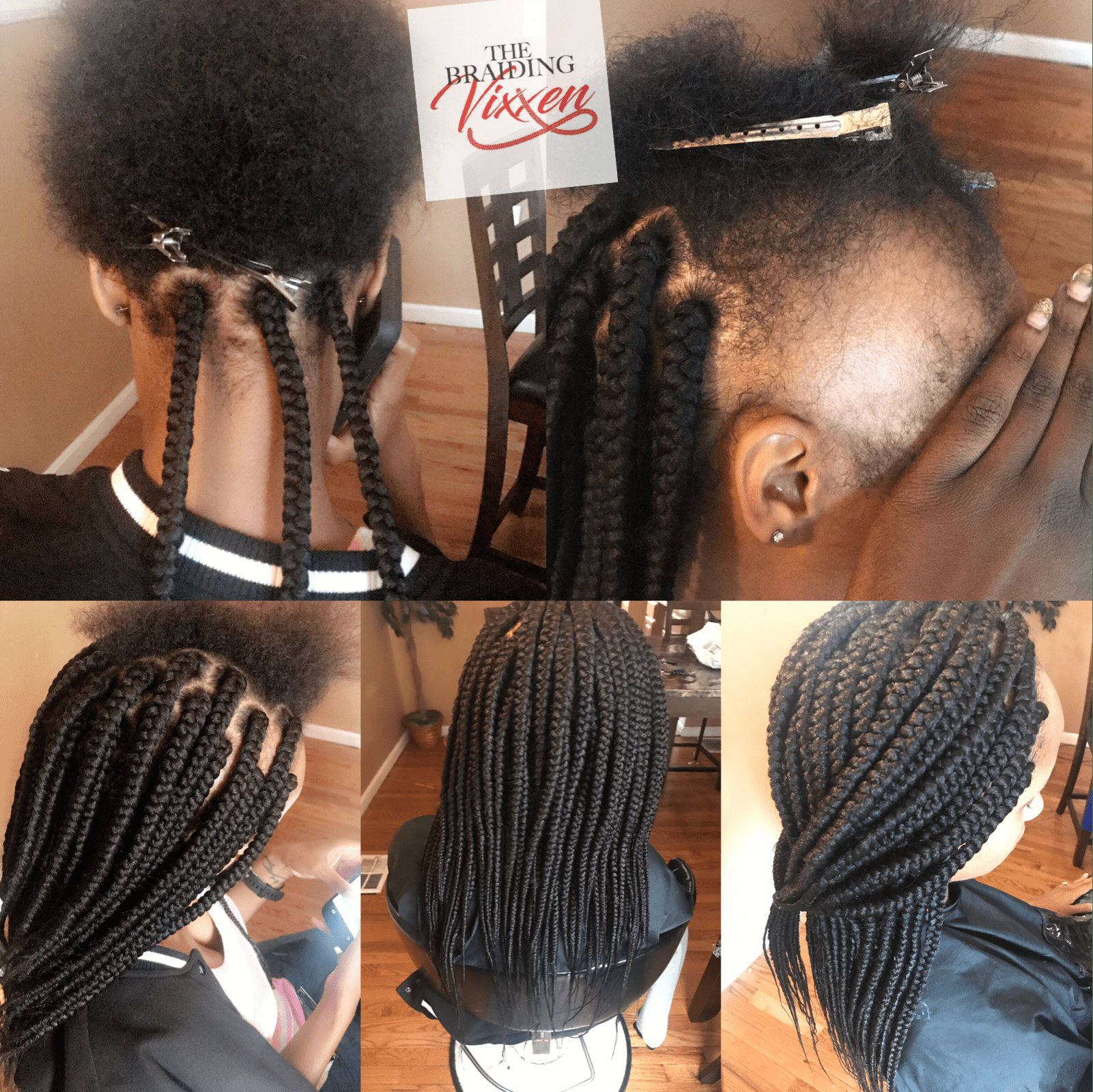 The Best Medium Box Braids On Client Who Has Alopecia Braiding Pictures