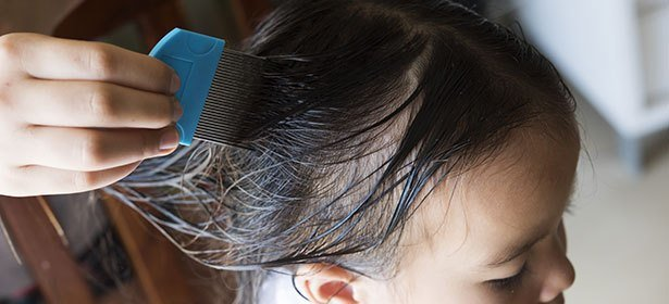 The Best Head Lice And Nit Guides And Advice Which Pictures