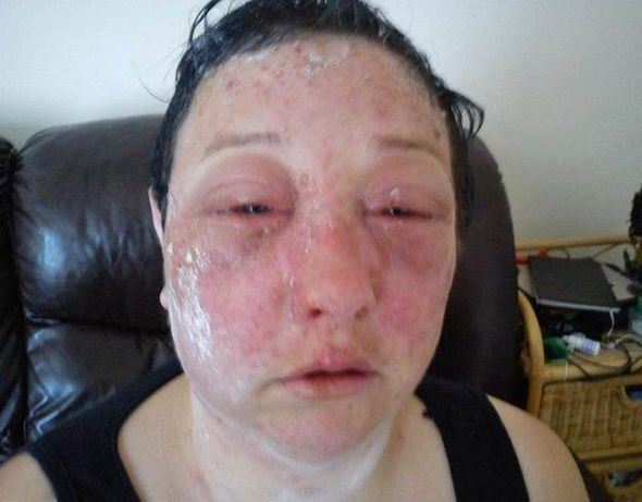 The Best Horror Hair Dye Allergic Reaction Leaves Woman S Life In Pictures