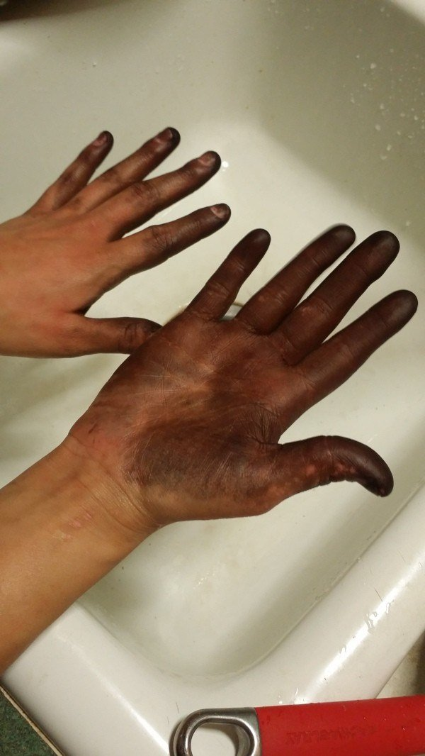The Best Getting Hair Dye Off Skin Thriftyfun Pictures