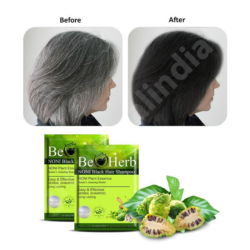 The Best Buy Noni Black Hair Shampoo Buy 10 Get 2 Free Pictures