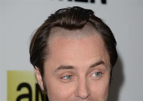 The Best Mad Men Pete Campbell S Receding Hairline From Season 1 Pictures