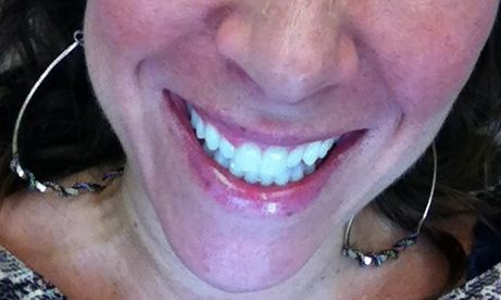 Teeth White After
