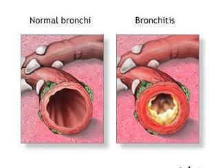Az asztma kezelése illóolajokkal