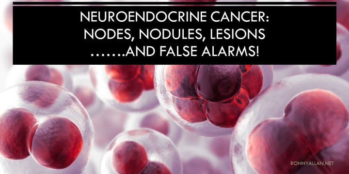 Neuroendocrine Cancer: Nodes, Nodules, Lesions (and false alarms!)