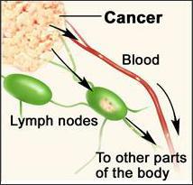 Neuroendocrine Cancer: Nodes, Nodules, Lesions
