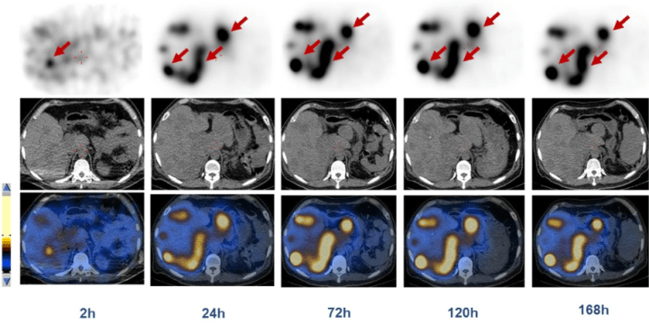 177Lu-DOTA-EB-TATE – Long-lasting radionuclide therapy for advanced neuroendocrine tumors proves effective