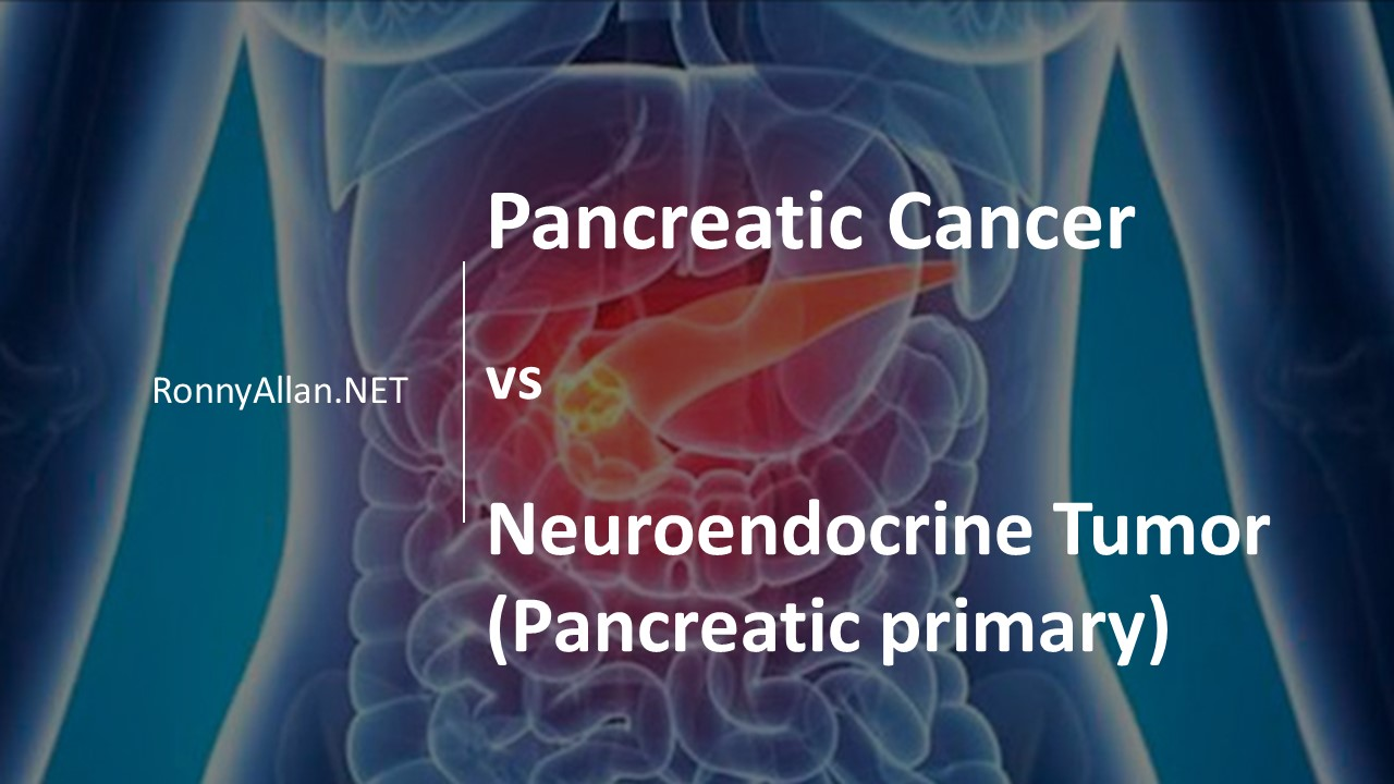 cancer of neuroendocrine