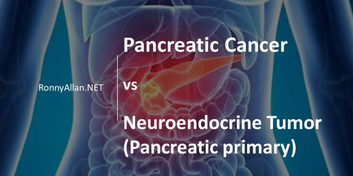 Pancreatic Cancer vs Neuroendocrine Tumours of Pancreatic Origin
