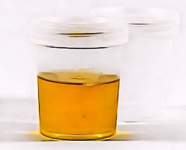 An abstract image of a urine sample.