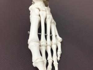 仙台市青葉区で外反母趾に筋膜を施術する整体