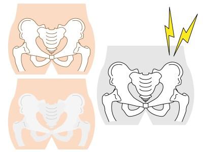 仙台市青葉区の整体で腰痛を筋膜で治療するときにチェックすること
