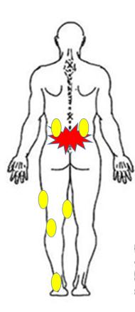 仙台の整体で腰痛に筋膜リリースを行うルーツ