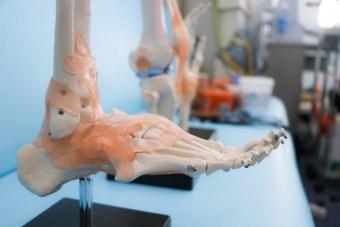 足首の痛みが残るような捻挫の後遺症