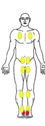 仙台市青葉区の整体で有痛性外脛骨に筋膜を治療したポイント