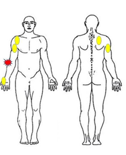 仙台の整体でテニス肘に筋膜に施術をするポイント
