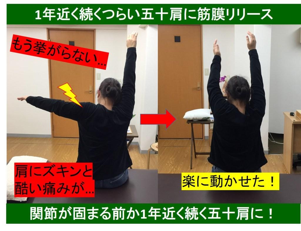 仙台で肩の痛みは整体ルーツ